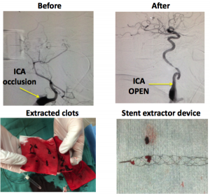 Before and after clot exraction