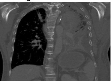 non-small-cell-lung-cancer