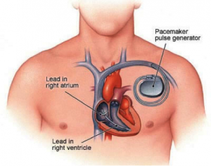 Placement of pacemaker diagram
