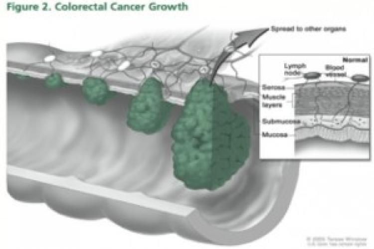 Preventing colon cancer: it's not that hard a pill to swallow